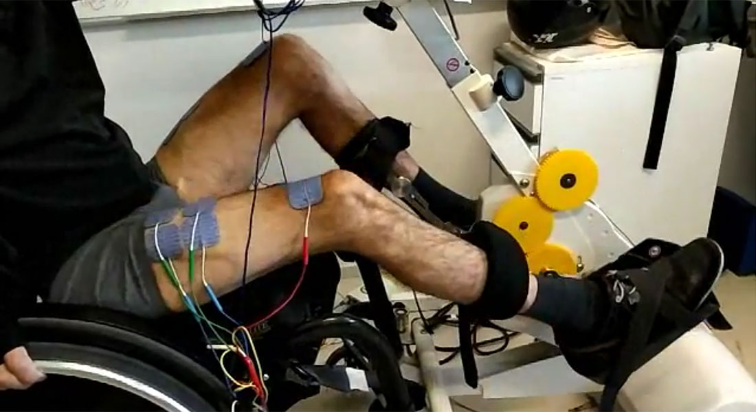 Motimove - pacemaker za pokrete